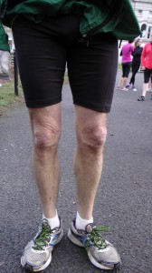 runner's knees